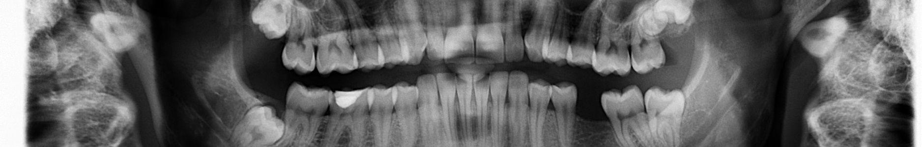 teeth bones xray